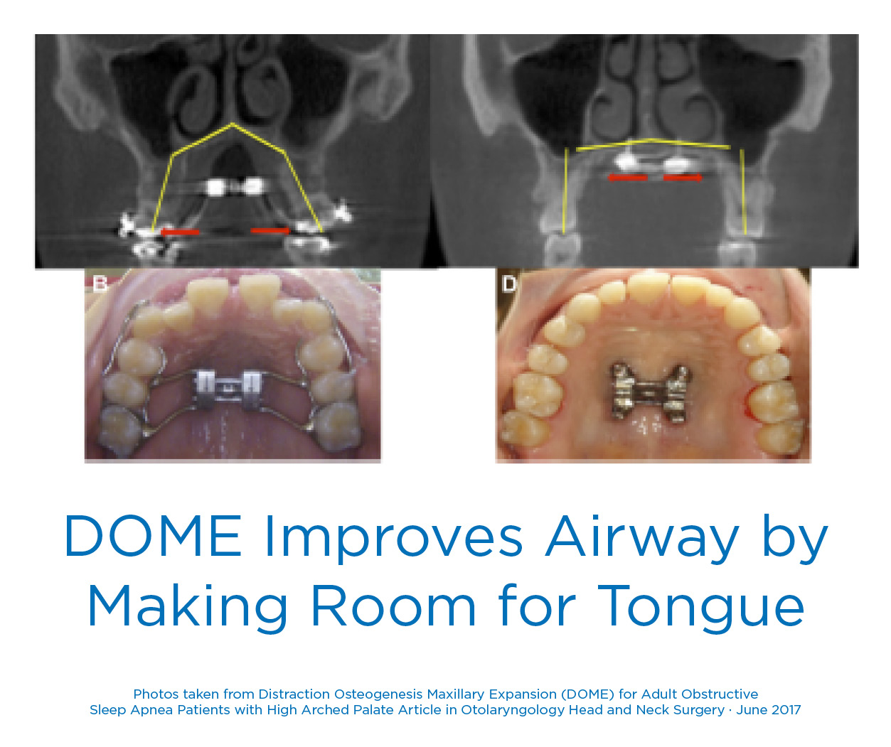 DOME for Sleep Apnea Improves Airway Making Room for Tongue