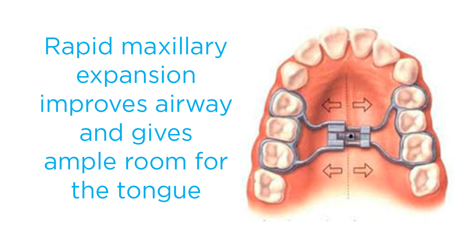 Rapid Maxillary Expansion infographic