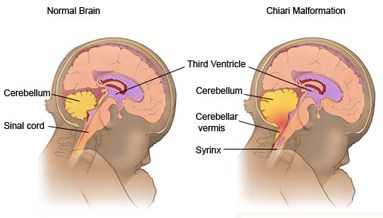 Diagram comparing a normal brain and one suffering from Chiari malformation
