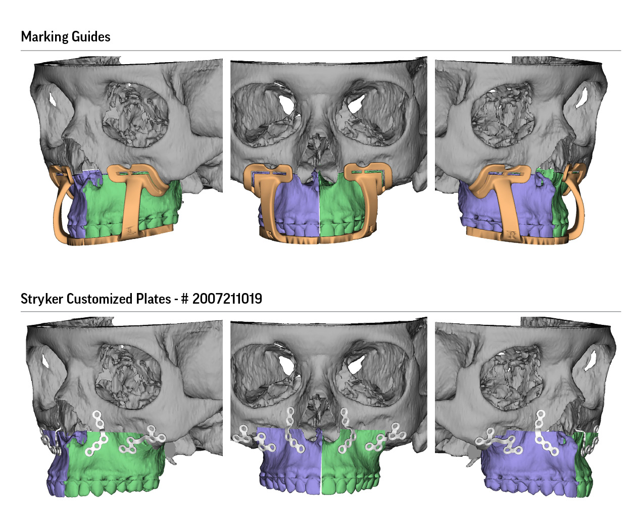 Surgical Planning for Maxillofacial Surgery