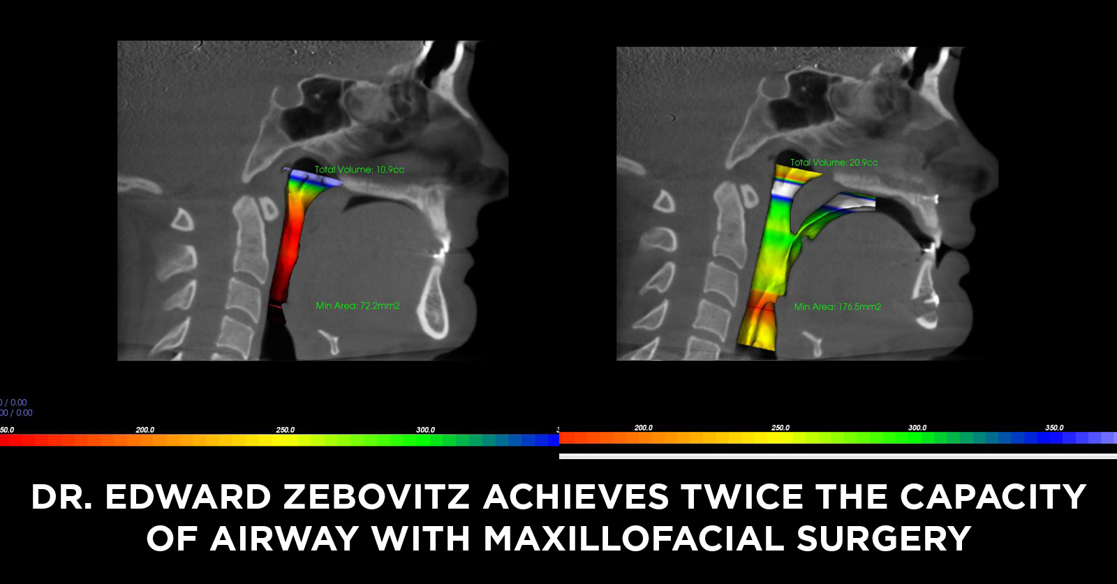 How Corrective Jaw Surgery Can Double the Size of Your Airway