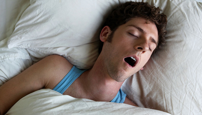 Study on oral flow and its findings related to mild versus severe sleep disordered breathing