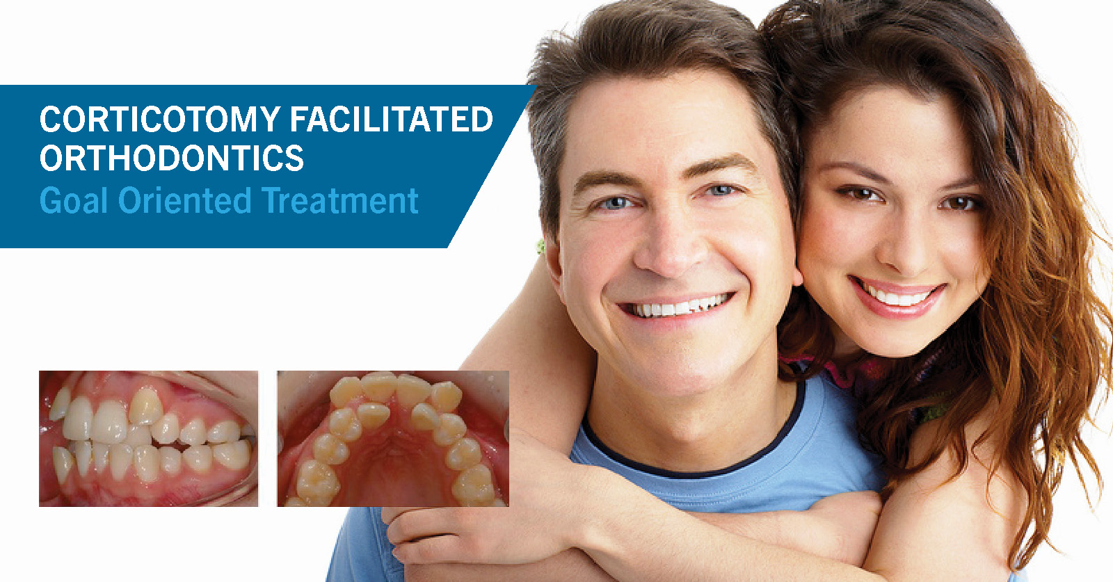 Goal Oriented Treatment with Corticotomy Facilitated Orthodontics