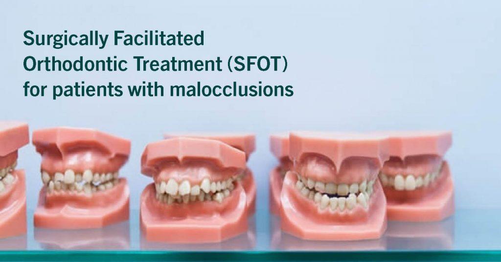 Rows of prosthetic teeth