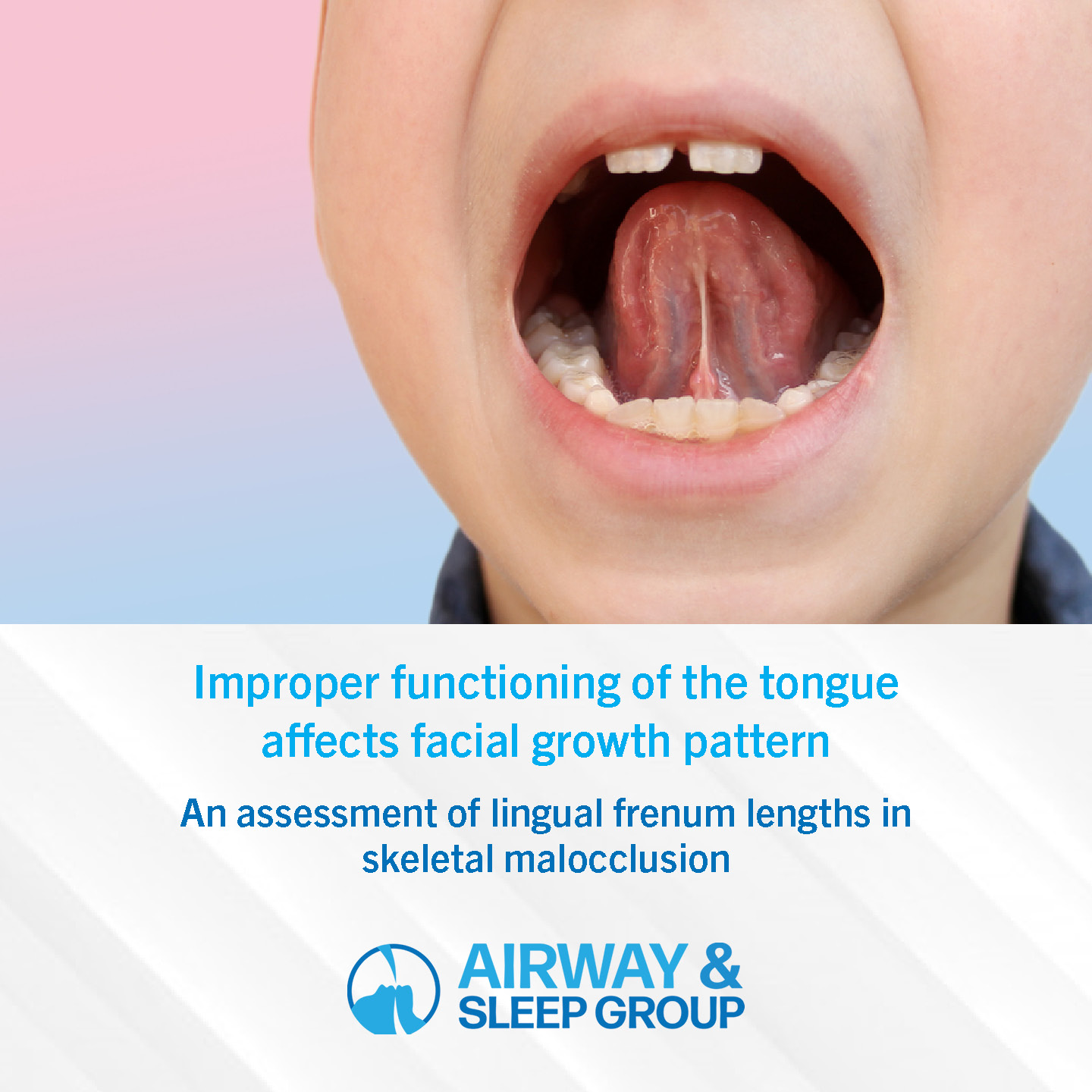 The wrong positioning and function of the tongue can affect the facial growth pattern