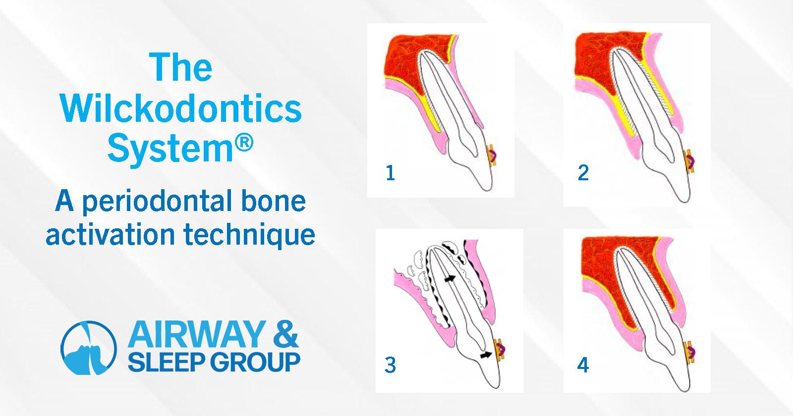 The Wilckodontics® system—a periodontal bone activation technique